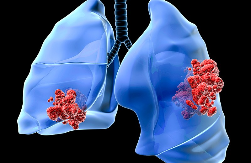 Immunotherapy, a Wonder for the Lung Cancer Patients