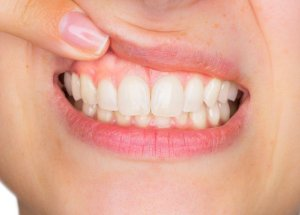 Periodontitis Increases The Risks Of Developing Several Forms Of Cancer