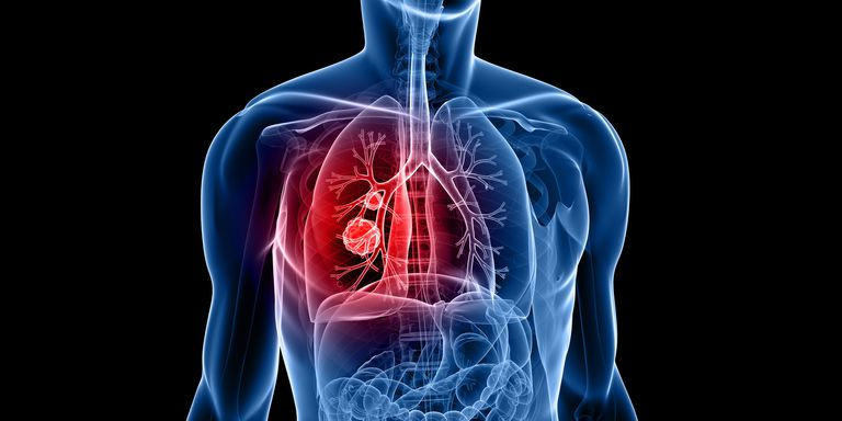 Lung Cancer Incidence In Young Women Is Higher In The US And Is Not Related To Smoking