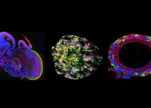 Organoids Or Mini-Organs Are The Latest Groundbreaking Discovery In Analyzing New Drugs And Treatments