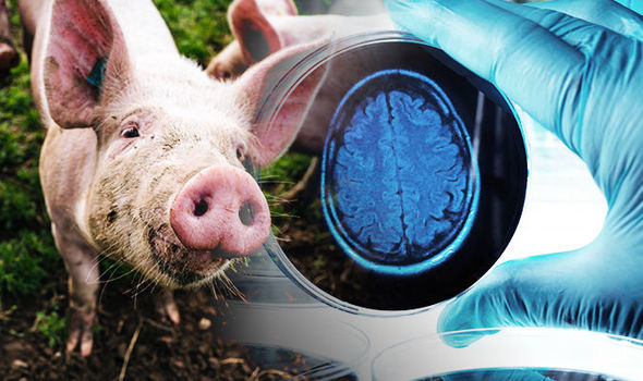 Scientists Managed To Keep A Pig Brain Alive For 36 Hours, Separated From The Body