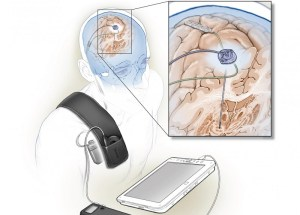 Self-Adaptive Brain Implant Might Reduce Parkinson's Disease Motor Symptoms