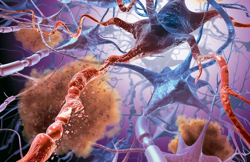 Iron Levels In The Brain Help Doctors Predict Impairments In Patients With Multiple Sclerosis