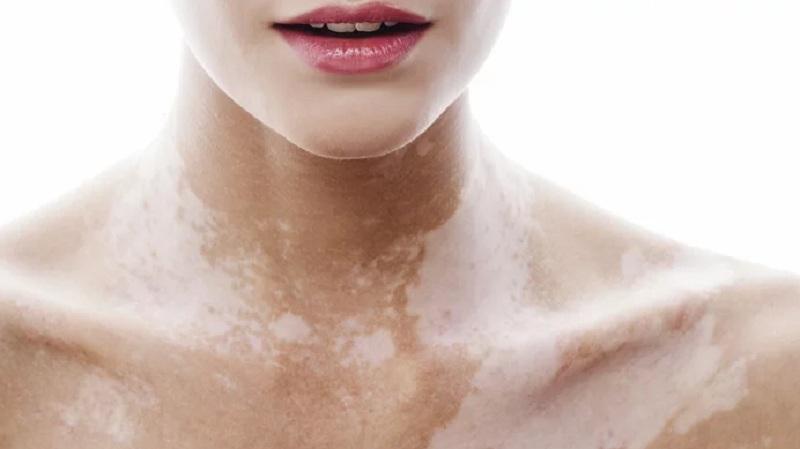 New Vitiligo Treatment Researched At The University Of Massachusetts' School Of Medicine