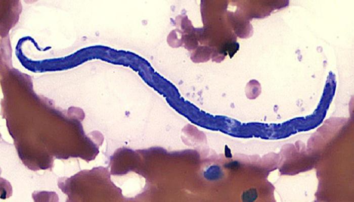An Eye Worm, Loa Loa, Caused An Artist's Health Failing For Years