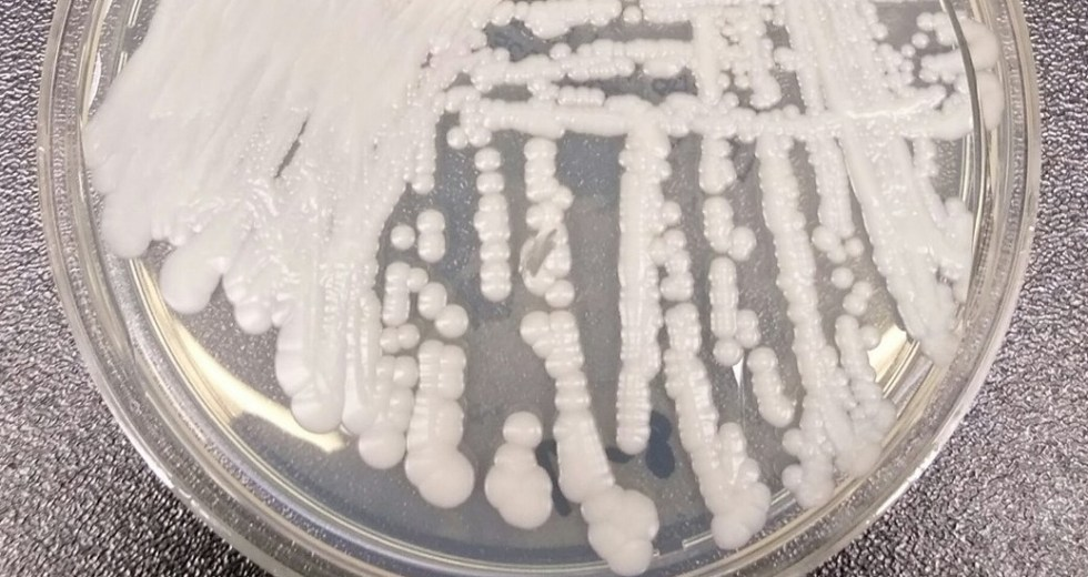 Australian State Of Victoria Reports Its First Case Of Superbug Fungus, A Candida Auris Antibiotic-Resistant Strain