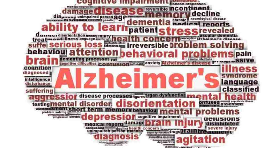 Alzheimer's Disease Related To Heavily Sleeping During The Day