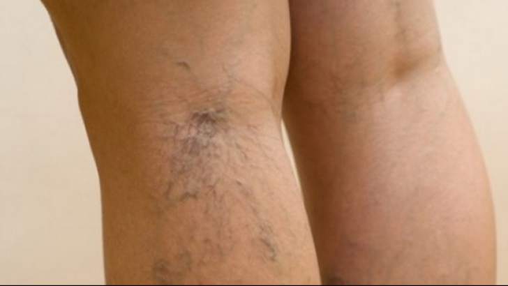 Your Height Might Increase the Risks of Varicose Veins