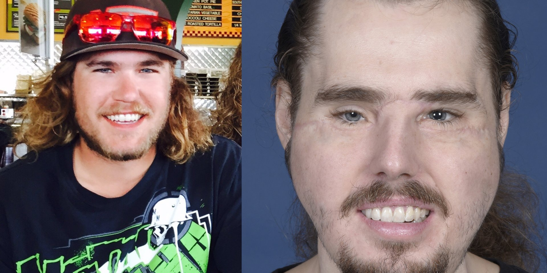 Man gets a new face, and a second chance at life