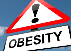 Obesity Causes Insulin Resistance in Type 2 Diabetes