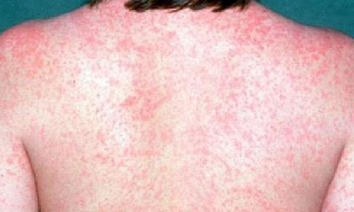 Measles Outbreak Hits the United States