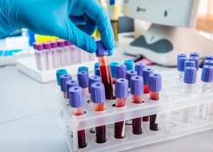 How Does Blood Testing Work When Testing For Illness
