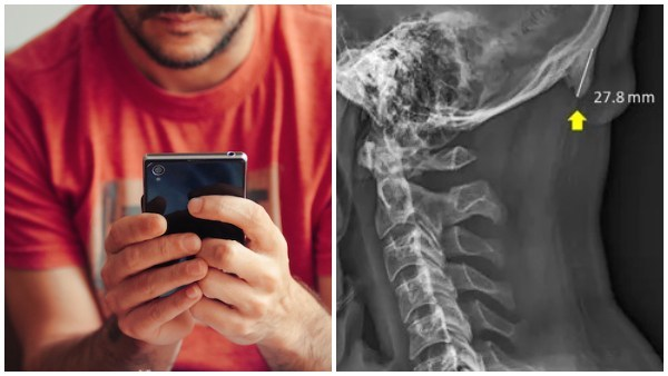 Excessive Smartphone Usage Promotes The Growth Of Horn-Like Bones In Young Adults