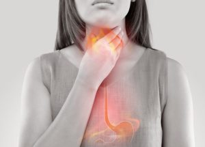 Acid Reflux Linked To Intermittent Fasting And Keto Weight Loss Diets