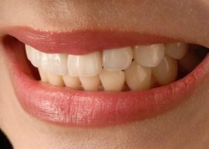 6 Things You Need to Know Before Getting Dental Veneers