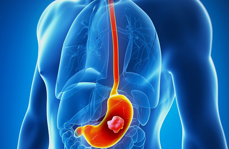 New Medicine Might Be A Reliable Cure For Gastric Cancer