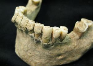 Ancient Human Fossils Showed That Stressful Events Leave Marks On The Teeth