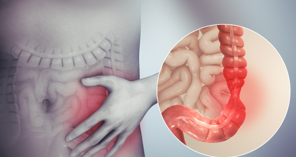 Irritable Bowel Syndrome Can Be Treated With Psychological Treatments