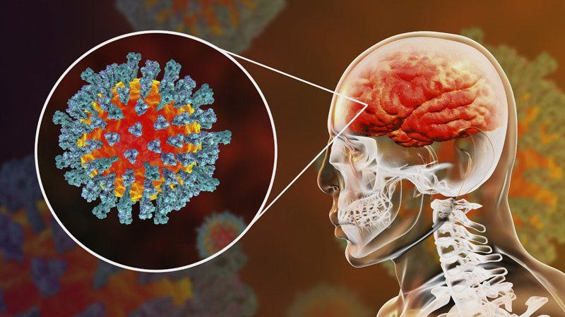 COVID-19 Disturbing Effects On The Brain Revealed
