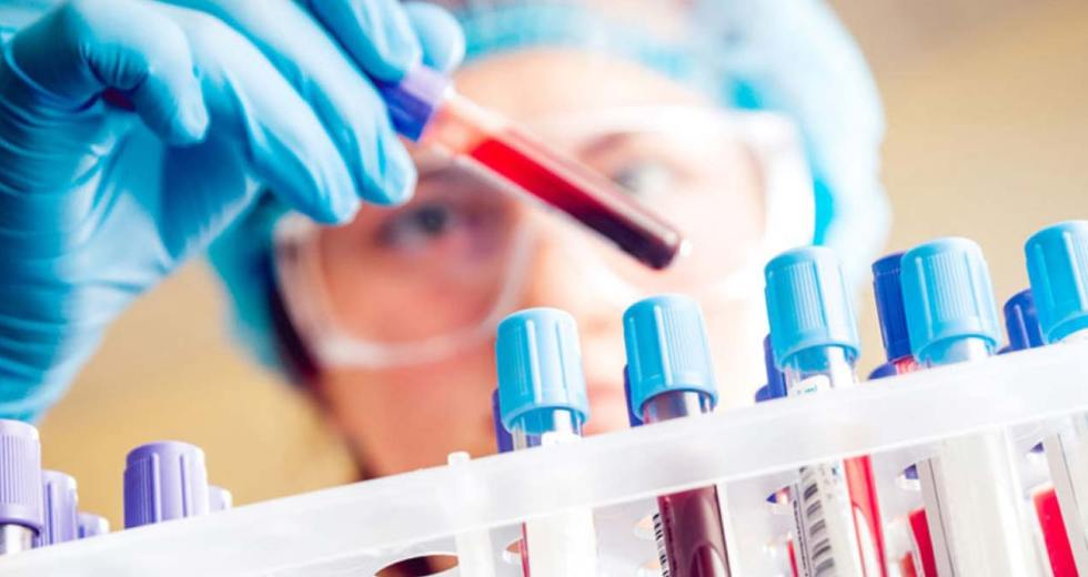 Detecting Pancreatic Cancer With Just a Blood Test – It's Likely Months Away From Implementation