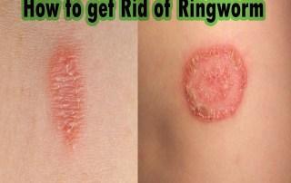 get rid of ringworm