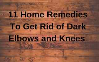 home remedies to get rid of dark elbows and knees
