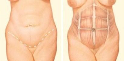full tummy tuck incision