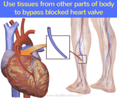Angioplasty or bypass surgery which is better