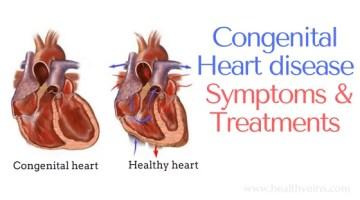 Congenital heart disease in infants symptoms and treatments