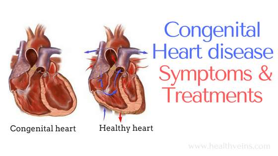 Congenital heart disease in infants symptoms