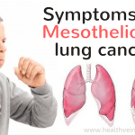 Symptoms of mesothelioma lung cancer
