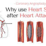 heart stent after heart attack