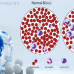 chronic lymphocytic leukemia diagnosis and treatment