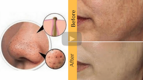 How to clear clogged pores on face naturally