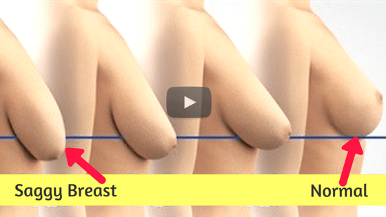 Top 5 Home Remedies To Make Sagging Breast Firm | Video