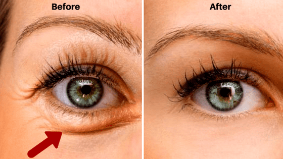 how to get rid of bags under your eyes