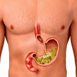 how to reduce stomach acid and gas naturally