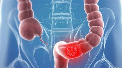 Photo of كيف يمكن علاج سرطان القولون بالغذاء؟