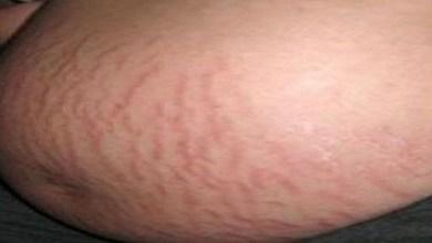 Photo of علاج التشققات الحمراء أثناء الحمل