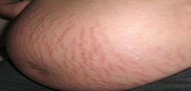 علاج التشققات الحمراء أثناء الحمل