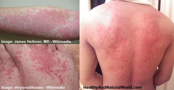 Image Result For Best Treatment For Allergic Reaction