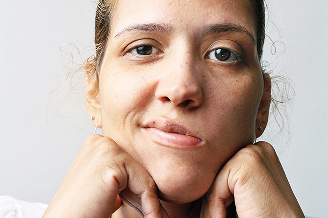 Image result for Bell's Palsy Causes and Remedies