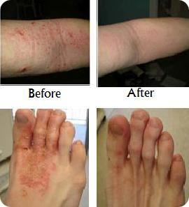 Eczema Free forever before and after