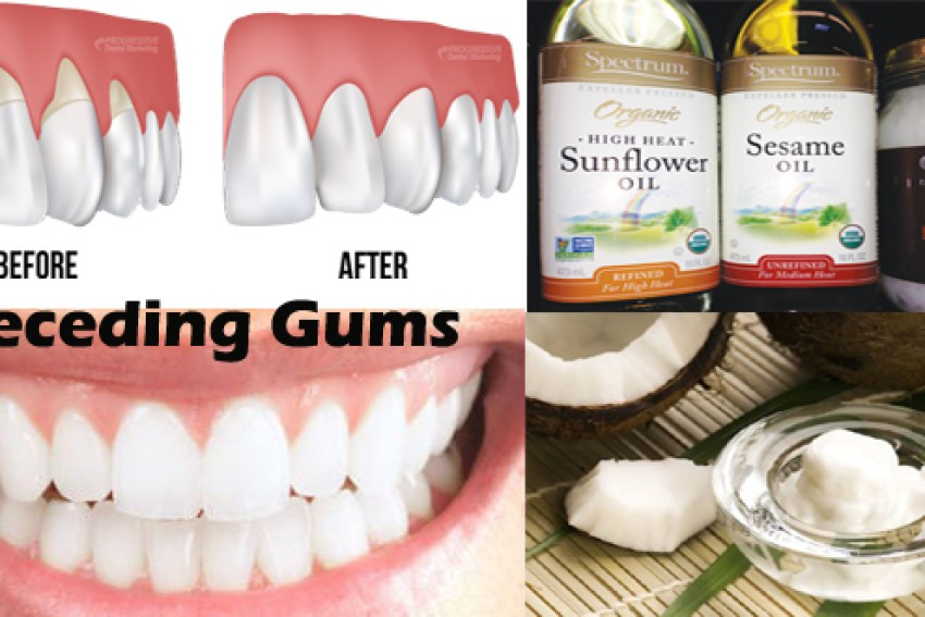 natural home remedies for receding gums healthy food house