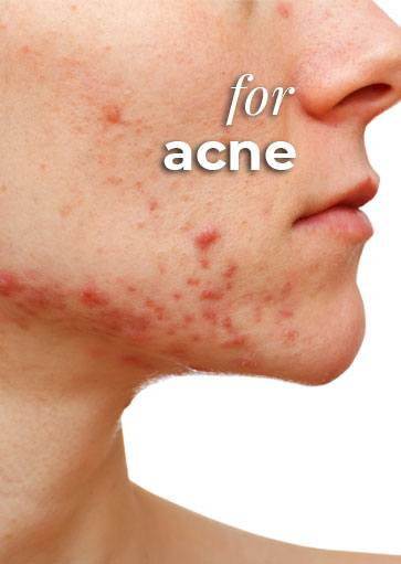 CBD for acne