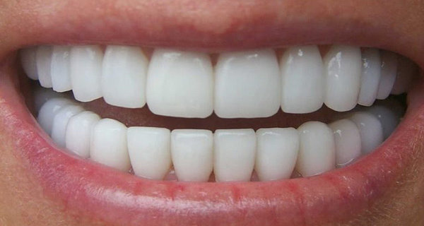 A Dentist Friend Told Me How To Eliminate Tartar and Whiten My Teeth In 4 Steps With This Homemade Recipe