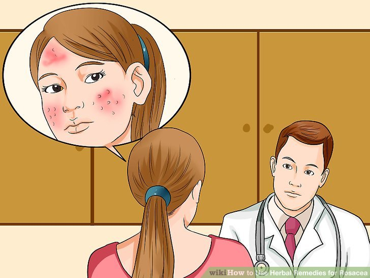 Natural Home Remedies Against Rosacea That Might Help You!