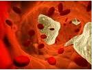 Developing Cardiovascular Disease