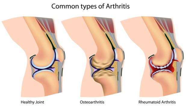 rheumatoid arthritis and osteoarthritis