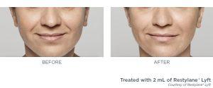 Cosmetic procedures